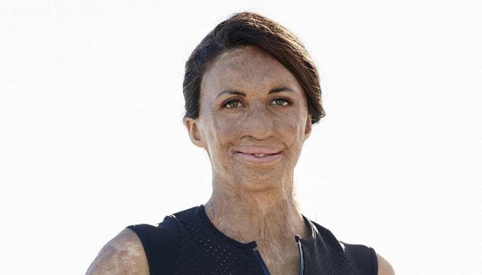 Turia Pitt: 'When you have the right mindset, anything is possible'