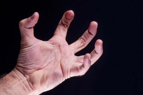 Far Out Friday: Man must repay insurers after hand-severing fraud